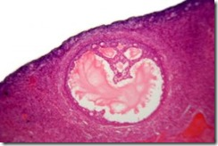 1152904_humans_ovarian_follicle_-_microscopic_view_1